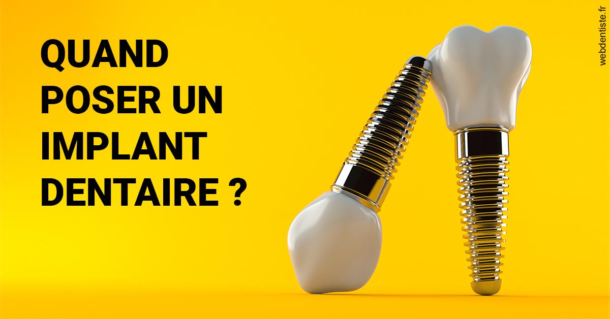 https://dr-brousse-alain.chirurgiens-dentistes.fr/Les implants 2
